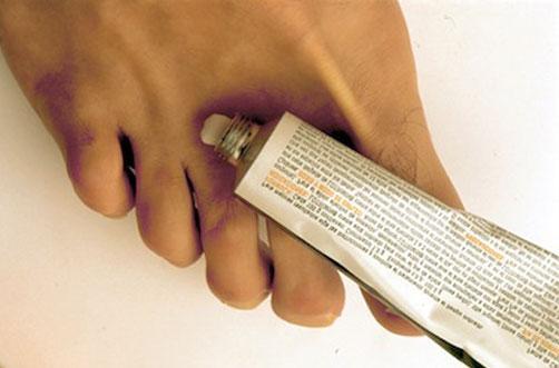 tratamiento para la infección fúngica de la piel en la cara